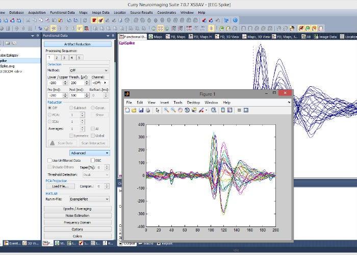 Matlab-Windows